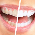 Best Teeth Whitening Items with Summary