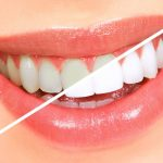 Best Teeth Whitening Kit and Summary