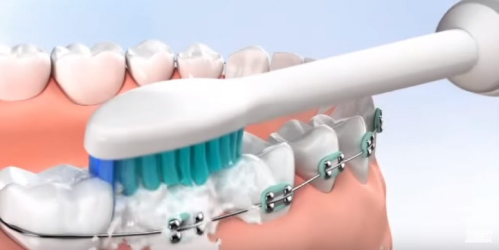 Best Electric Toothbrushes For Braces In 2018