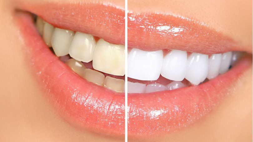 Cost of Teeth Whitening and Price Analysis
