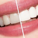 Teeth Whitening Kit Reviews and Summary