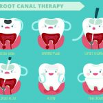 What is Rooth Canal Explained
