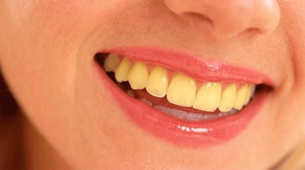 Yellow Teeth System