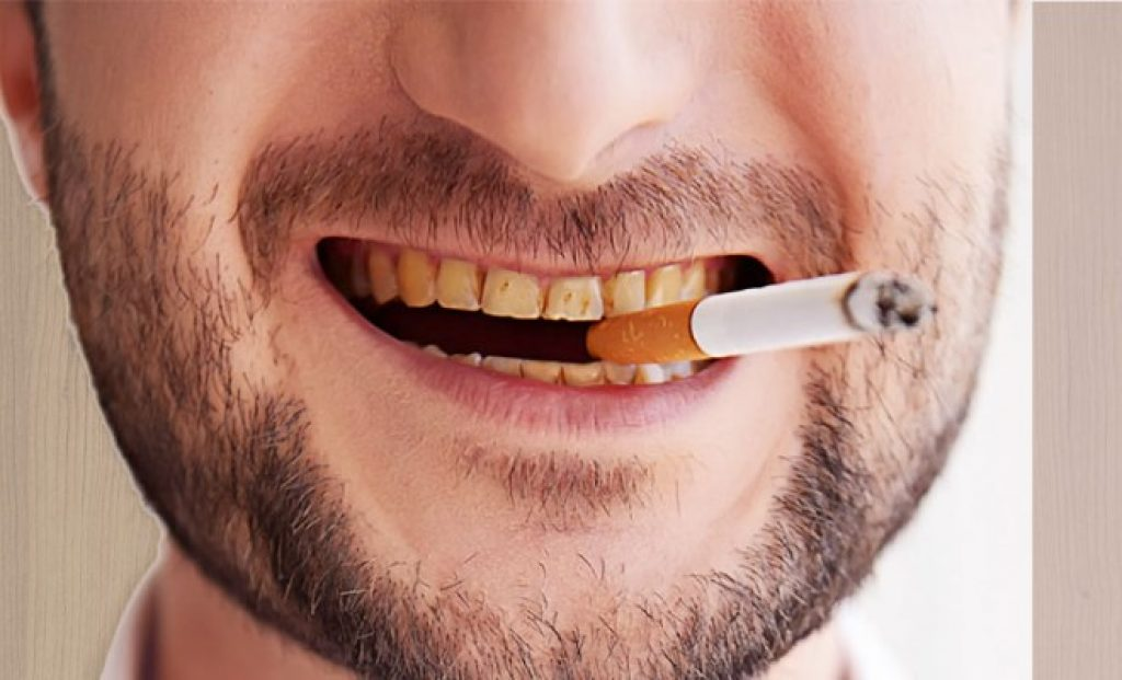 Yellow Teeth from Smoking